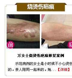 激光祛疤点阵激光祛疤效果图激光祛疤过程图